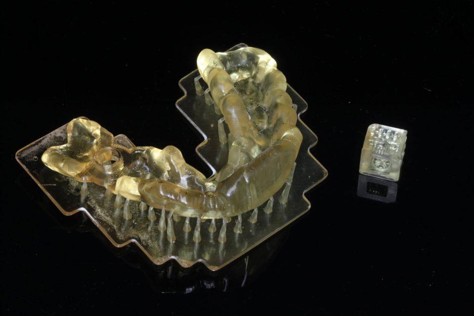 IN 3D hàm răng nha khoa, tạo mẫu 3D răng hàm resin